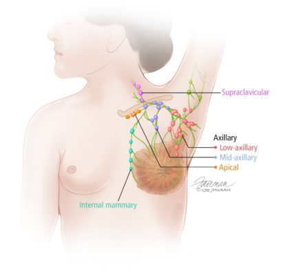 Overview Of The Breast Breast Cancer Johns Hopkins Pathology