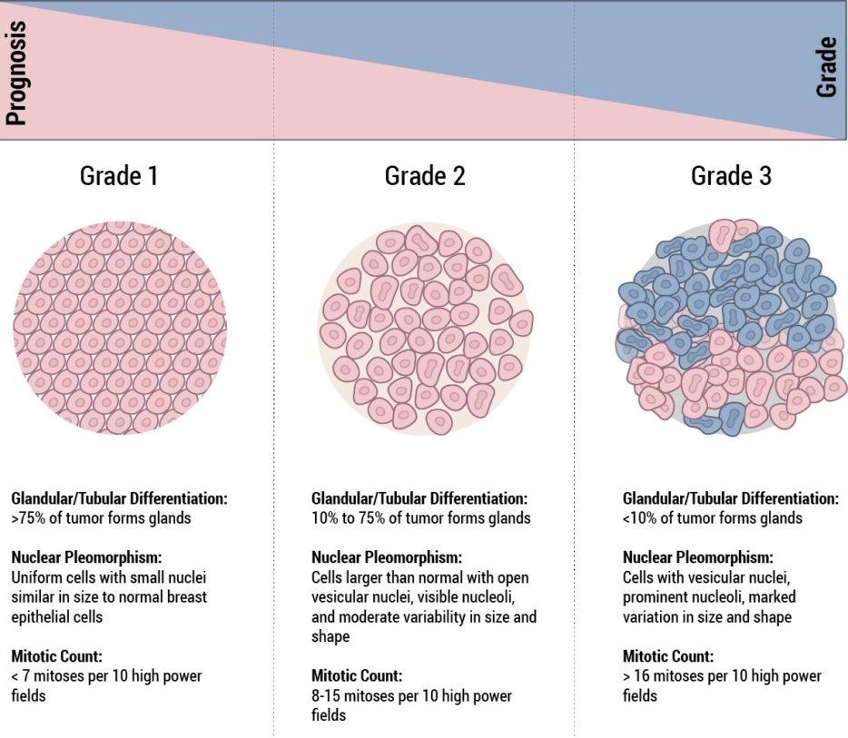 Staging & Grade - Breast Pathology | Johns Hopkins Pathology