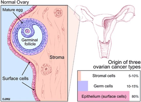Types Of Ovarian Tumors Ovarian Cancer Johns Hopkins Pathology