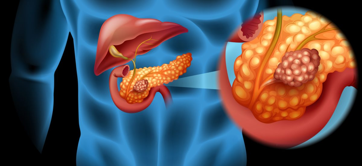 Pancreas cancer illustration