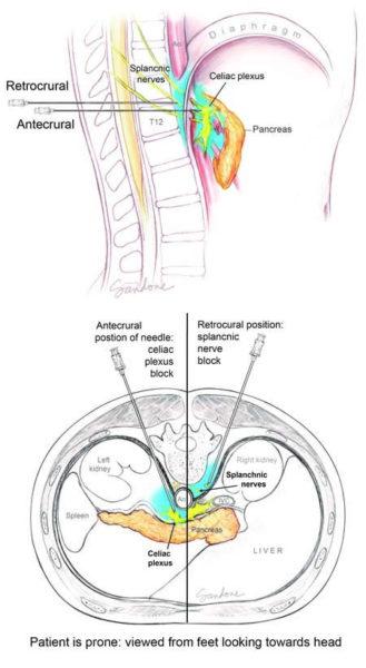 celiac plexus nerve block - illustration by Corinne Sandone